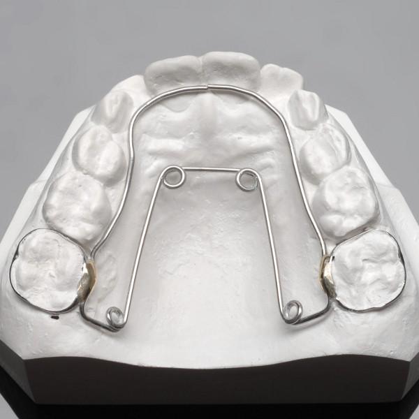 Appareillage fixe d'expansion maxillaire (Quad'Hélix)