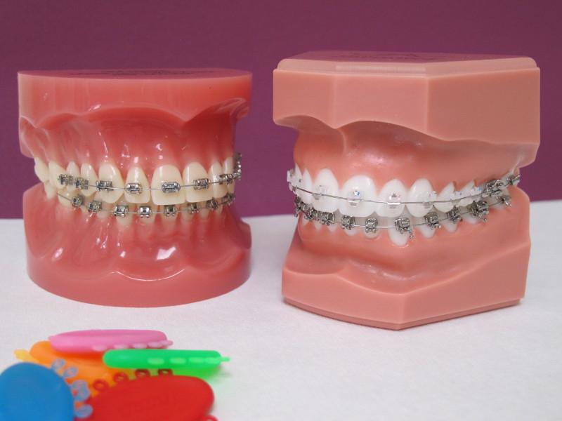 appareil d'orthodontie fixe